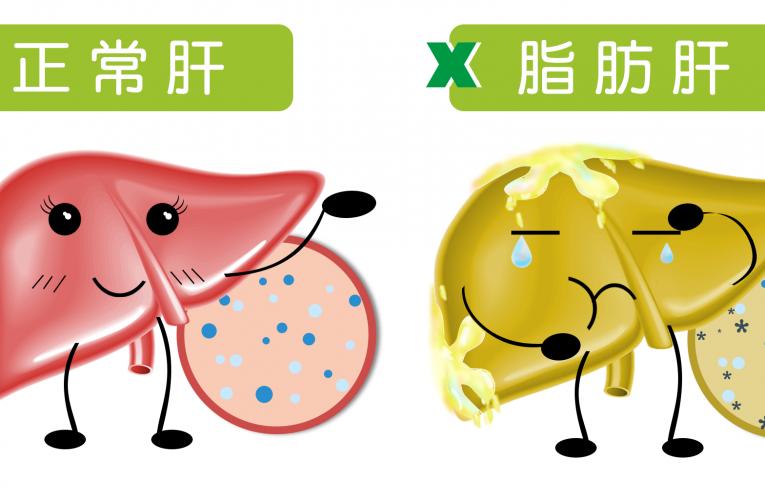 [新聞]拯救脂肪肝 可以改善變好,也可能持續惡化!